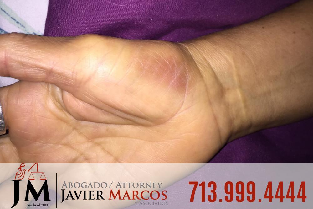 Herido en el Trabajo   Abogado Javier Marcos   713.999.4444